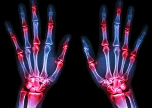 New Diagnosis Explains Why You Have Stiff Joints
