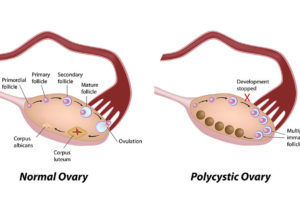 SHOCKING! Not Even Stars Are Safe: One in Five Women Suffer from Polycystic Ovary Syndrome