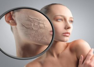 Best Natural Treatments For Dry Skin That You Can Make At Home