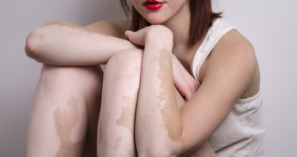 Vitamin D Might Be The Key Ingredient In Vitiligo Treatment