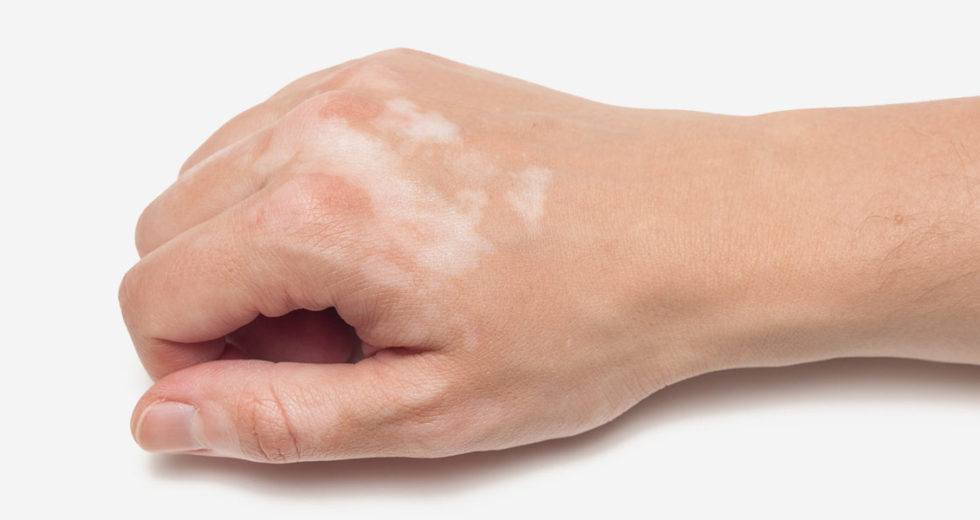 4 Natural Remedies For Vitiligo That Will Improve Your Condition