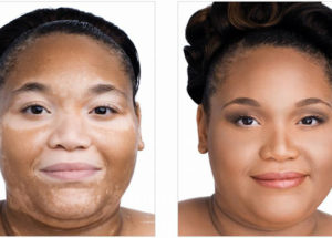 Vitiligo – Manifestations And Symptoms Of The Disease