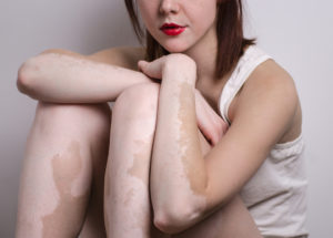 Natural Remedies For Vitiligo – Red Clay, Ginger, Turmeric & More