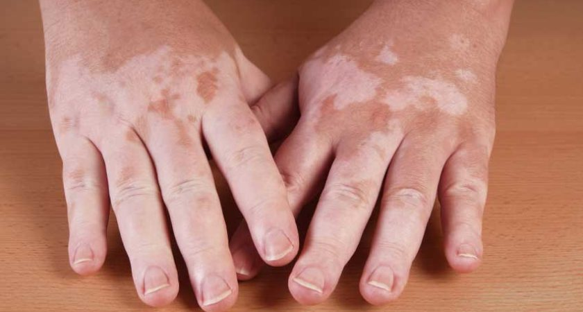 Vitiligo Cure Discovered After Years Of Research