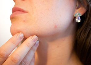 5 Products That Will Help You Win The War Against Acne