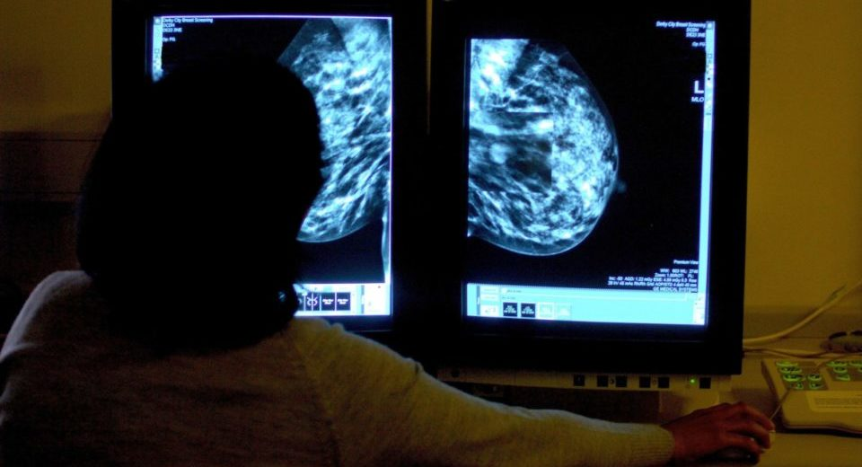 BRCA gene does not alter breast cancer survival rates