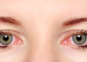 Best Natural Remedies For Red Eyes And Conjunctivitis