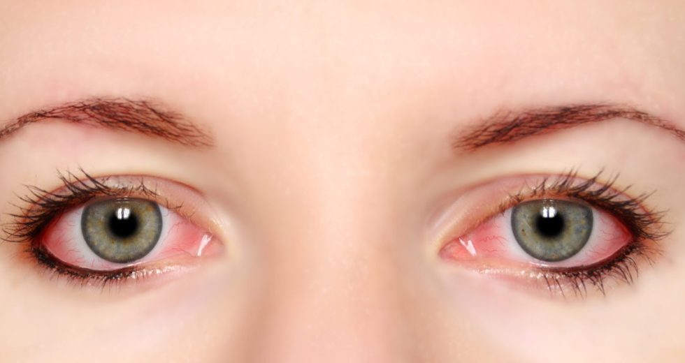 Best Natural Remedy For Dry Eyes