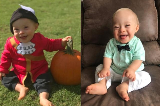 Lucas was named 2018 Gerber baby. He has Down syndrome