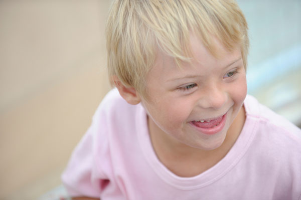 the different characteristics of down syndrome and how to manage them Down syndrome can affect how a person looks and thinks, and it's sometimes  linked with other health problems, as well  mental skills -- and treat medical  issues -- children with down syndrome have a much better chance to.