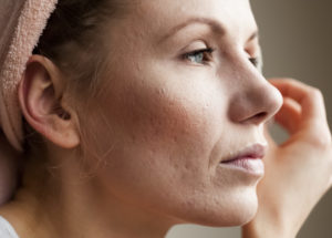 How to Deal with Acne as an Adult