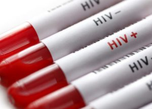 Protection Against A Virus Similar To HIV Was Obtained – Are There Hopes For A Possible HIV Vaccine In Humans?