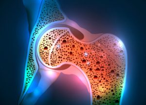 Osteoporosis Is Linked To The Intestinal Microbiota – Probiotics Might Help!