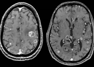 Brain Metastases Treatment, A STAT3 Gene Inhibitor, Discovered By Spanish Researchers