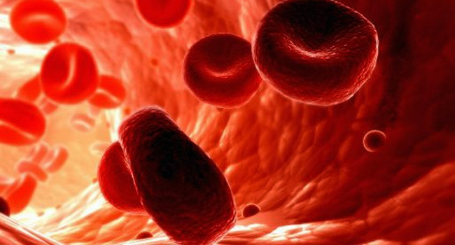 Genetic Mutations At The Blood Cells Level Might Indicate Acute Myeloid Leukemia In Advance