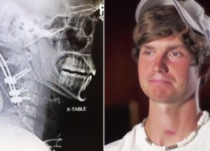 This Indiana Man Beats Death For The Third Time After Surviving Internal Decapitation