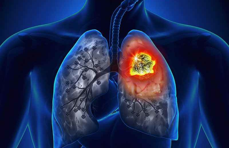 Lung Cancer Has A Significant Direct Economic Impact Across Latin America, a British Study Revealed