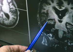 Is Alzheimer's Disease Linked to the Herpes Virus?