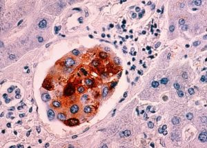 A 10-minute Test Could Show if There are any Cancer Cells in the Human Body