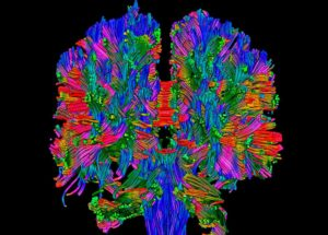 Brain Scans In Newborns Might Help Specialists Detect Autism