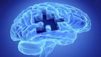 Top Ways to Reduce Your Risk of Alzheimer's Disease