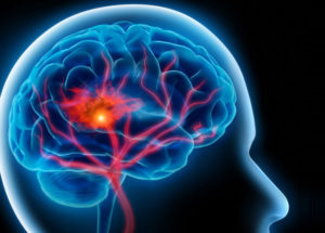 Prolonged Working Hours To Boost Risks Of Stroke