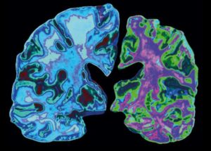 Decrease the risk of Alzheimer's by having a healthy lifestyle