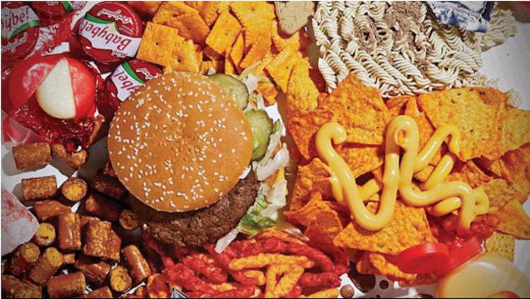 Western Diet Can Lead To Brain Damage