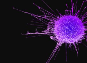 Scientists Are One Step Closer to Break Cancer's Resistance to Drugs