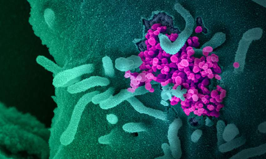 New Ebola Outbreak Emerges in Africa while Competing with COVID-19