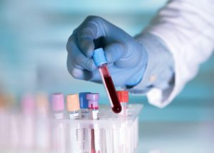 Blood Types at Risk for COVID-19