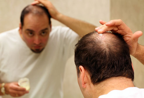 Hair loss isn't just your mother's father's fault