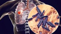 Tuberculosis Managed to Reshape the Immune Systems of Many People