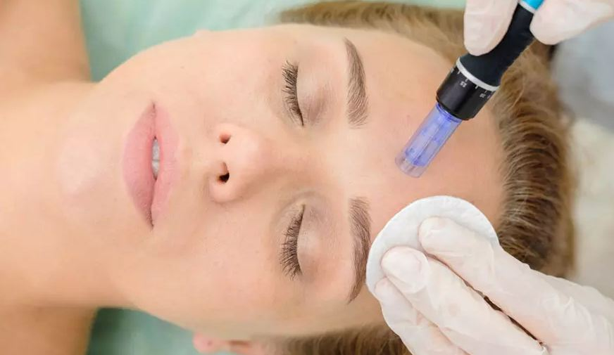 Microneedling is the Skin Care Option You May Need – What Should You Know