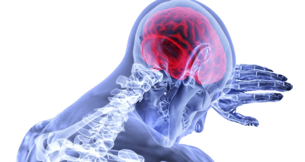 It's 80 Percent More Possible to Have a Stroke During a Precise Time