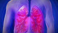Cannabidiol Oil Could Provide Help in Lung Cancer Regression